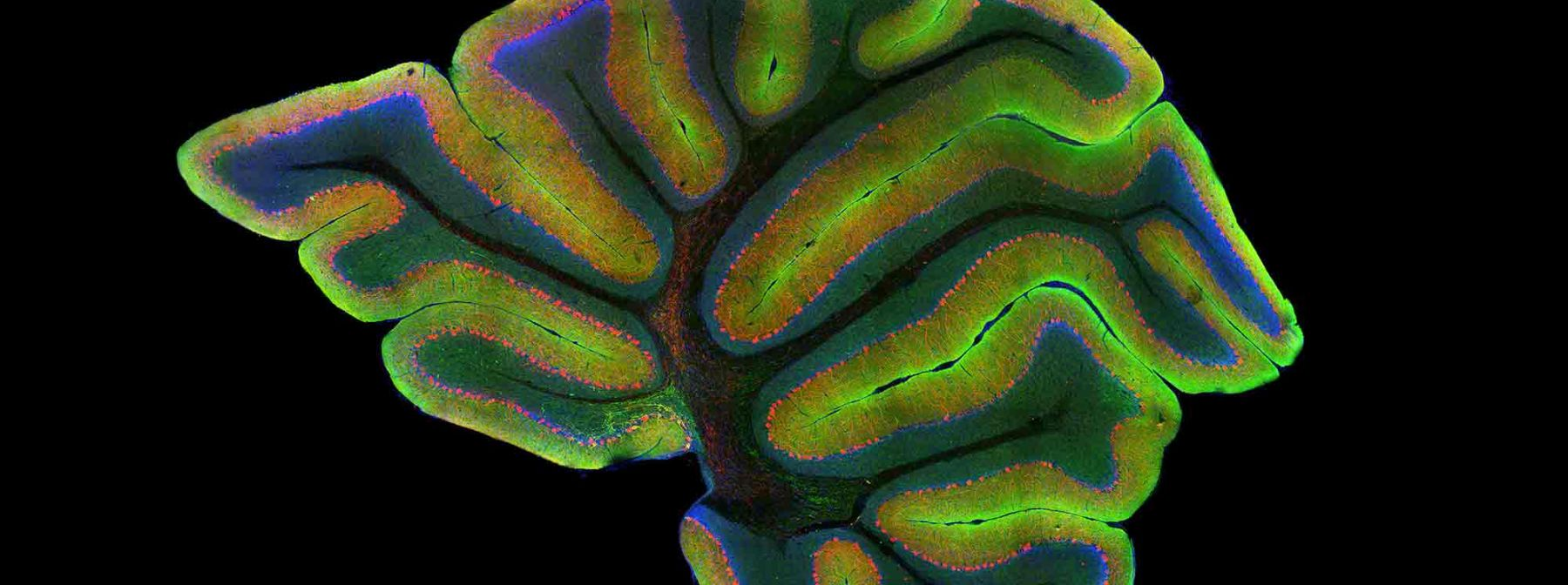 Laser scanning confocal image of a mouse cerebellum.